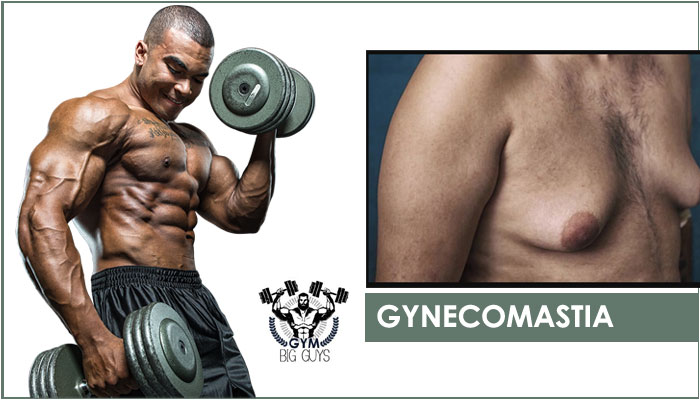 Gynecomastia – Best Gyno Treatment Pills to Reduce Male Breast! [2020]