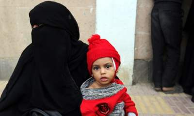 Yemen war results in starvation death for 85,000+ children less than 5 years old