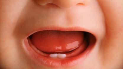 Bebeklerde Diş Çıkarmaya Ne İyi Gelir ?