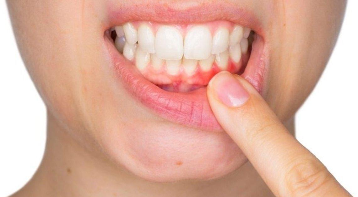 Diş Apsesine Ne İyi Gelir Bitkisel