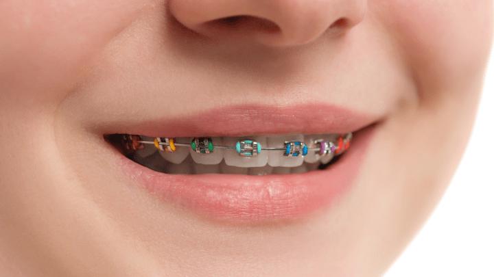 Diş Teli Tedavisi Ne Kadar Sürüyor ?