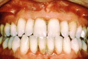 1953 jinjivit nedir 300x200 - What Is gingivitis ?