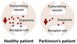 14069 parkinsons dopamine 300x171 - The Molecular Mechanisms That Causes Parkinson's Disease