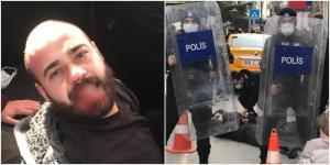 Ankara'da Boğaziçi'ne Destek Protestosuna Müdahale: Polis Bir Kişinin Dişini Kırdı, Gözaltılar Var…
