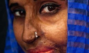 Toplumun dışladığı güzelliği yakalayan fotoğrafçı: Sanat hepimize iyi gelir