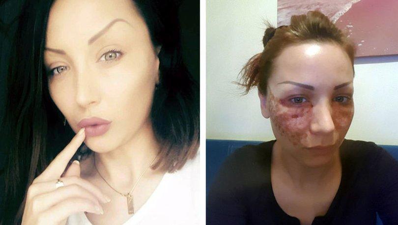 Genç Kadına 'Örümcek Ağı' Estetiği Dehşeti: 'Gözümü Kaybedebilirdim…'