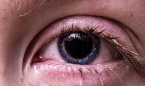Göz kızarıklığının nedeni 'kuruluk' olabilir