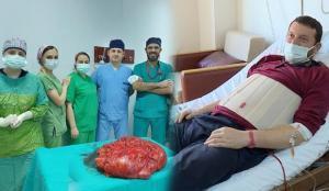 Trabzon'da 'karnım şiş' şikayetiyle hastaneye başvuran adamdan 21 kiloluk tümör alındı!