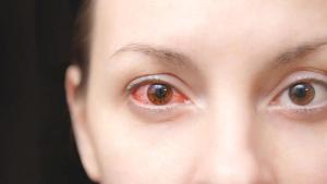 Mevsimsel göz alerjisi yaşayanlar için önemli hijyen uyarıları