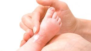 Bebeklerde görülen atopik dermatitin 8 belirtisi