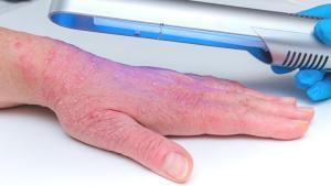 Sedef, egzama ve vitiligo hastalığında fototerapinin önemi