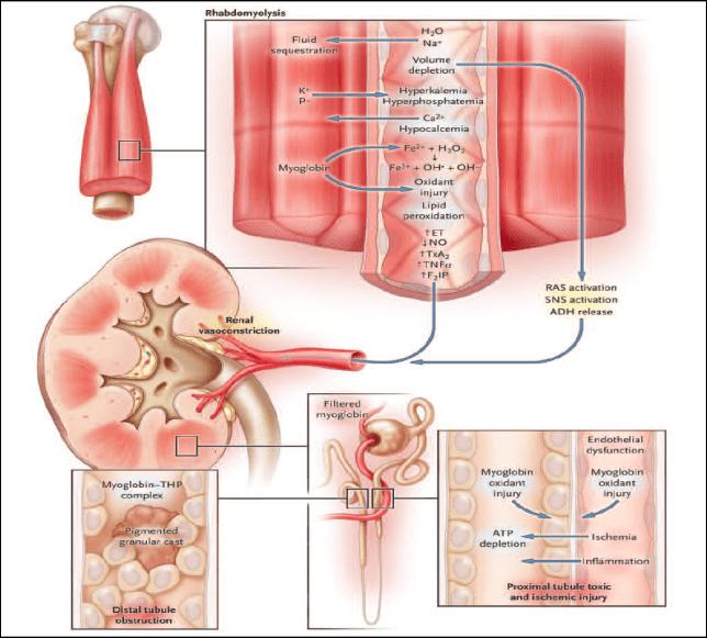 Pathophysiology of RML from Fortis La Femme, New Delhi