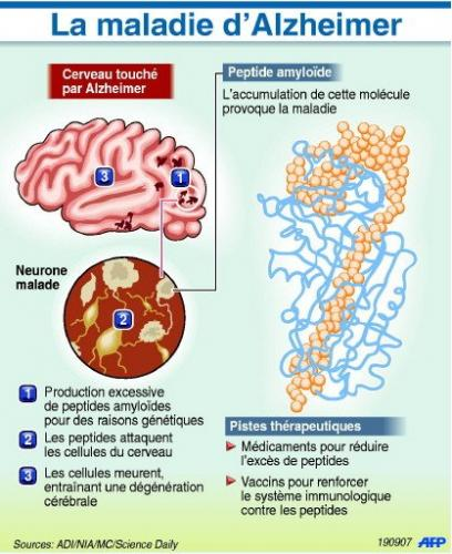 maladie d'alzheimer causes