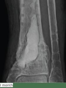 Transform osteomyelitis caused by Group B Streptococcus and MRSA - Biocomposites