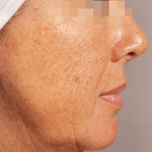 Green Peel hyperpigmentation before