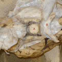 Sheep Brain Diagram Biology Corner Farmall B Wiring Dissection 3 On This Image The Dura Matter Has Been Completely Removed You Can Still See Optic Chiasma But Pituitary Gland Is Missing