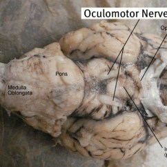 Sheep Brain Diagram Biology Corner Gfci Outlet With Switch Wiring Dissection Labeled Images