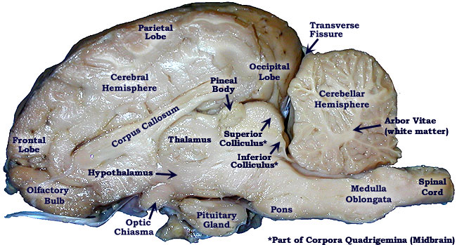 mouse dissection diagram wiring for neutral safety switch sheep brain bi - biology junction