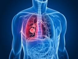 Dolor torácico: causas y tratamiento natural