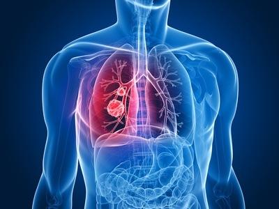 Pulmón saludable, Eliminación de Toxinas y Medicina China