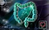 Diverticulosis: causas, tratamiento y prevención