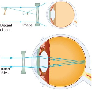 Light diagram for an eye that has myopia.
