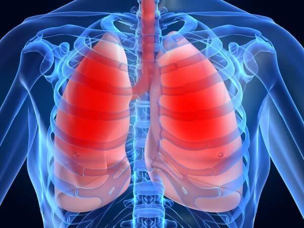 防治肺癌有道 低劑量CT及早揪病灶