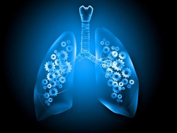 死亡率癌症之冠 肺癌標靶治療大突破