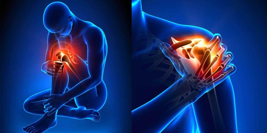 長期罹患乾癬恐併發關節炎 及早治療為關鍵