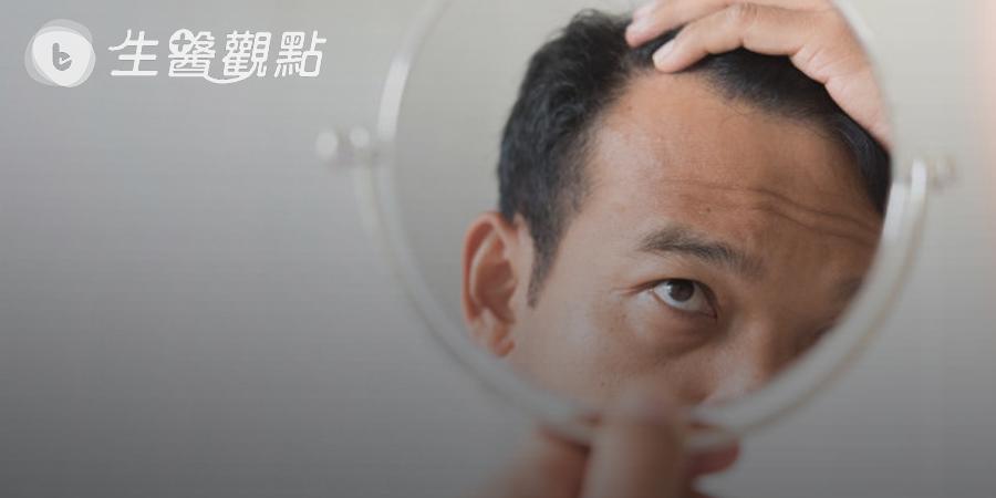 不到30歲就雄性禿 植髮機器人救回豐盛毛髮