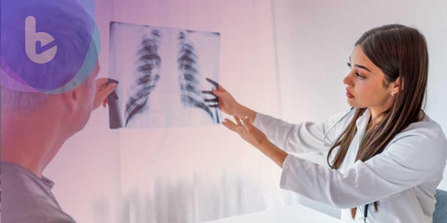 硬皮病也會引起肺纖維化 延緩疾病進程大突破!
