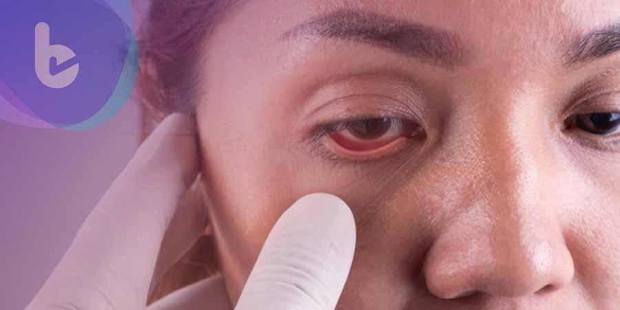 治黃斑水腫反出現嚴重飛蚊症 長效類固醇助回復視界