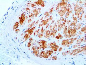 IHC of Smoothelin on an FFPE Uterus Tissue