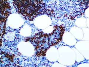 IHC of TdT on anFFPE Acute Lymphoblastic Lymphoma Tissue