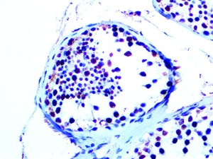 IHC of WT1 on an FFPE Testicular Cancer Tissue