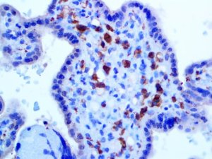 IHC of Factor XIIIa on an FFPE Placenta Tissue
