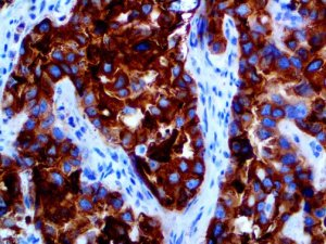 IHC of Glypican-3 on an FFPE Ovarian Carcinoma Tissue