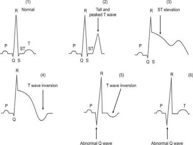 Role of Electrocardiogram (ECG) in Diagnosis, Prognosis