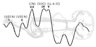 Auditory Evoked Responses ABR