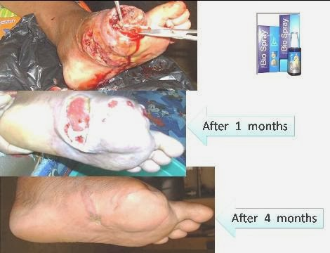 Diabetes+-+Alamuddin+3