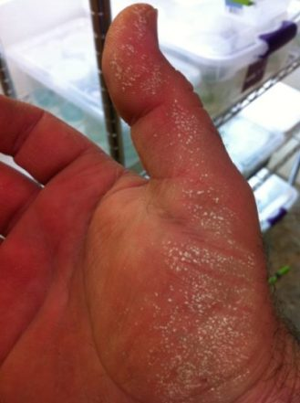 Oxidizing agent burned my skin when not wearing gloves.