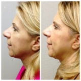 Browlift with Upper Lid Skin Excision and Lower Blepharoplasty, TCA Peel on Lower Lids