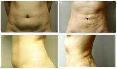 Liposcution of Abdomen