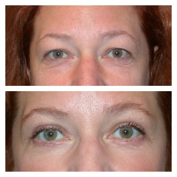Eyelid procedure at Birmingham Cosmetic Surgery