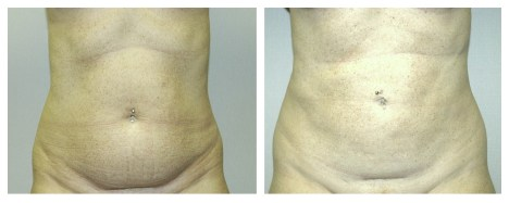 Liposuction by Dr. Rifai