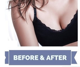 Breast Implants Before and after gallery