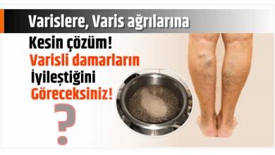 Photo of Varislere, Varis ağrılarına kesin çözüm! Varisli damarların iyileştiğini göreceksiniz.!