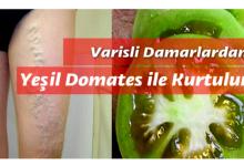 Photo of Varisli Damarlardan Yeşil Domates ile Kurtulun!