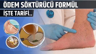 Photo of Ödem Söktürücü Formül İşte Tarifi..