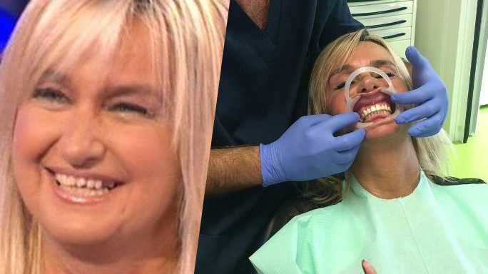 Barbara dUrso regala dei denti nuovi a Morena Funari e Simona Ventura muta  le foto prima e